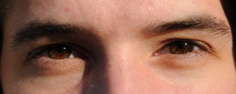 yeux melan